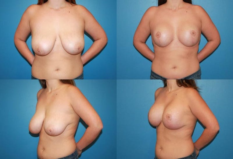 Reductive Augmentation of the Breast Gallery - Patient 2161522 - Image 1