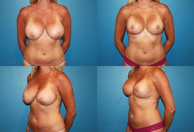 Reductive Augmentation of the Breast Gallery - Patient 2161528 - Image 1