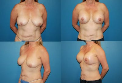 Reductive Augmentation of the Breast Gallery - Patient 2161531 - Image 1