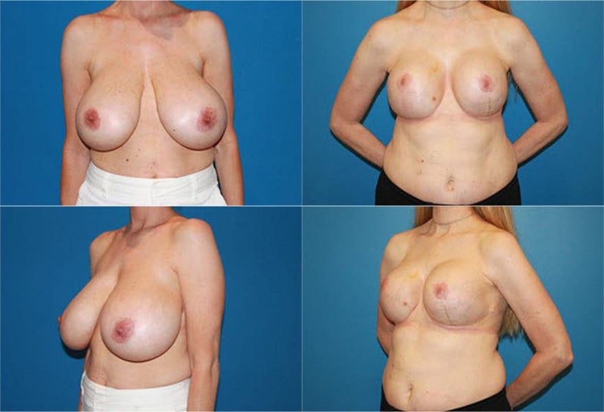 Before and after reductive augmentation of the breast