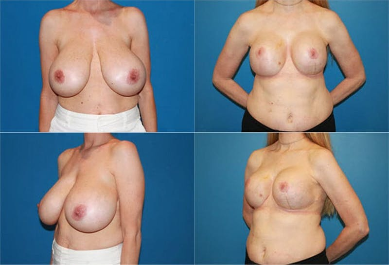 Reductive Augmentation of the Breast Gallery - Patient 2161533 - Image 1