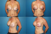 Reductive Augmentation of the Breast Gallery - Patient 2161535 - Image 1