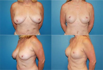 Reductive Augmentation of the Breast Gallery - Patient 2161538 - Image 1