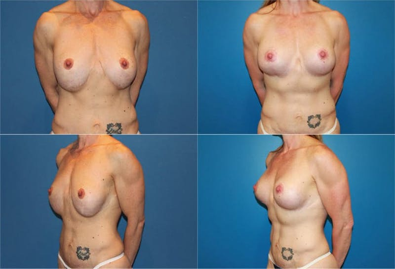 Reductive Augmentation of the Breast Gallery - Patient 2161539 - Image 1