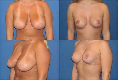 Reductive Augmentation of the Breast Gallery - Patient 2161541 - Image 1