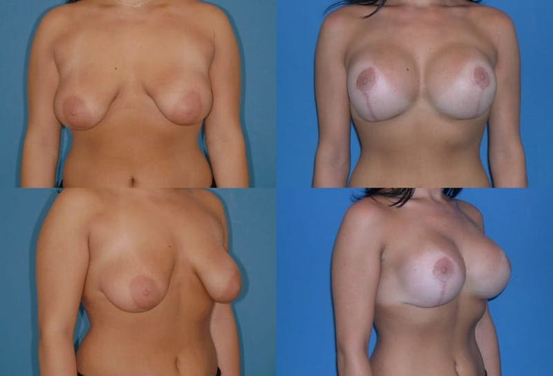 Reductive Augmentation of the Breast Gallery - Patient 2161542 - Image 1