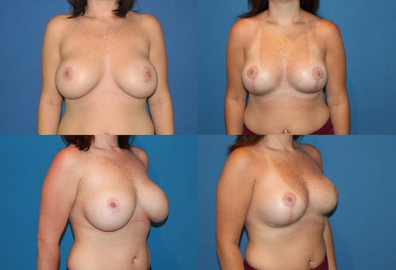 Reductive Augmentation of the Breast Gallery - Patient 2161546 - Image 1