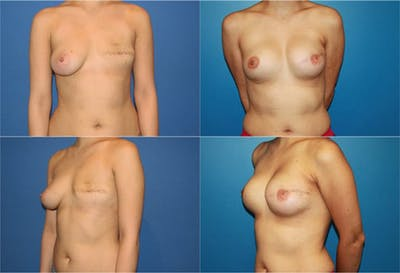 Breast Reconstruction Gallery - Patient 2161574 - Image 1
