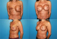 Breast Reconstruction Gallery - Patient 2161576 - Image 1
