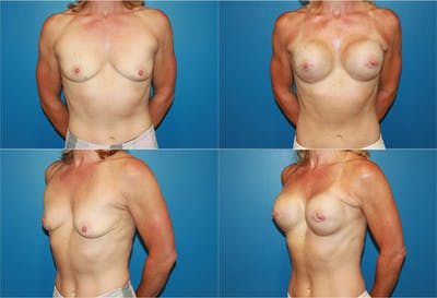 Breast Reconstruction Gallery - Patient 2161577 - Image 1
