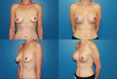 Breast Reconstruction Gallery - Patient 2161579 - Image 1