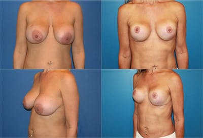 Breast Reconstruction Gallery - Patient 2161585 - Image 1