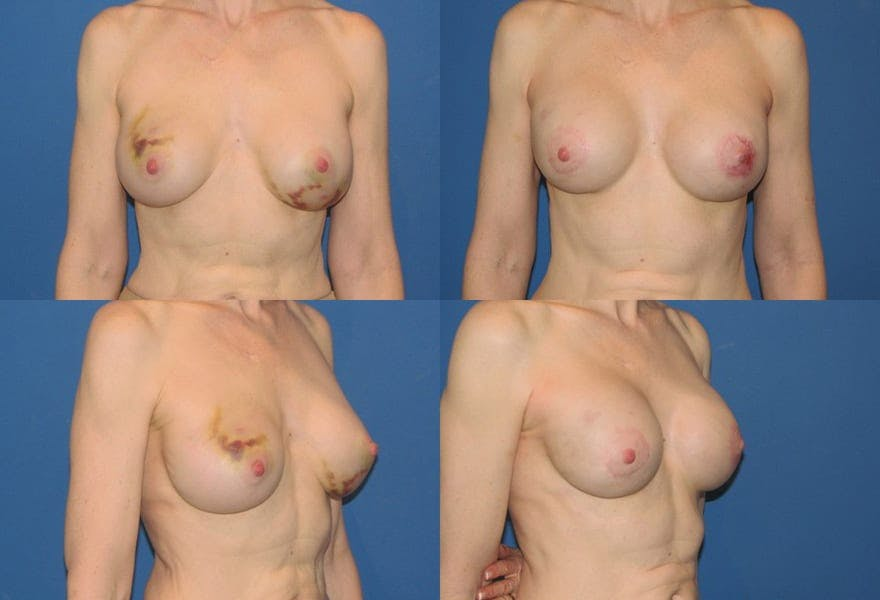 Breast Reconstruction results in San Diego at Ranch & Coast Plastic Surgery