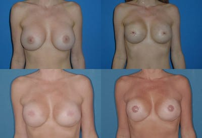 Breast Reconstruction Gallery - Patient 2161588 - Image 1