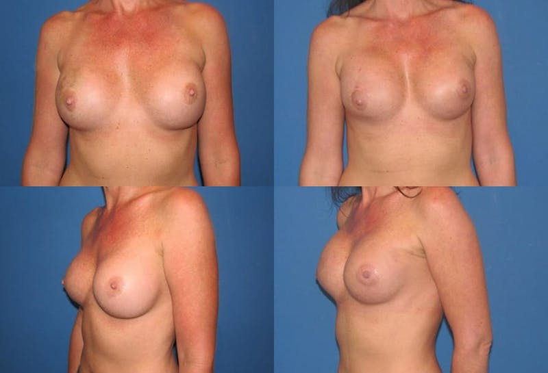 Breast Reconstruction Gallery - Patient 2161590 - Image 1
