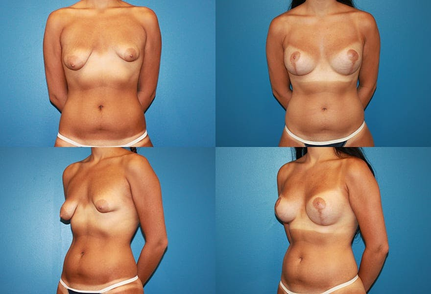 Before & after Tubular Breast correction at Ranch & Coast Plastic Surgery
