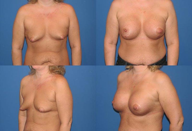 Tubular Breast Surgery and Augmentation
