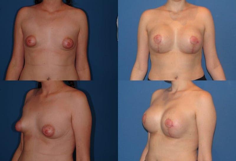 Tubular Breasts Gallery - Patient 2161616 - Image 1
