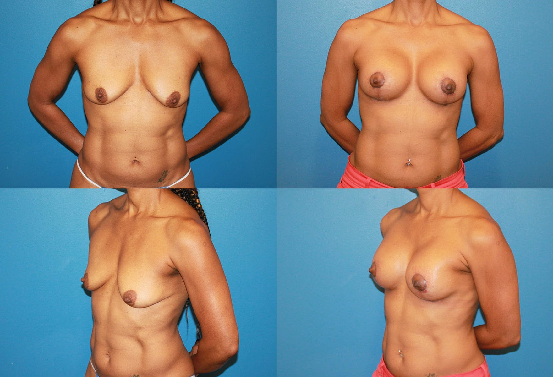 Body Building Figure Fitness Breast Augmentation