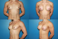 Body Building Figure Fitness Breast Augmentation Gallery - Patient 2161623 - Image 1