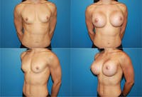 Body Building Figure Fitness Breast Augmentation Gallery - Patient 2161624 - Image 1
