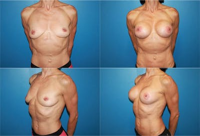 Body Building Figure Fitness Breast Augmentation Gallery - Patient 2161625 - Image 1