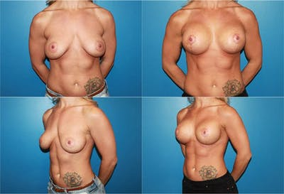 Body Building Figure Fitness Breast Augmentation Gallery - Patient 2161626 - Image 1