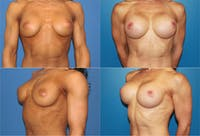 Body Building Figure Fitness Breast Augmentation Gallery - Patient 2161627 - Image 1