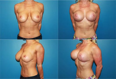 Body Building Figure Fitness Breast Augmentation Gallery - Patient 2161630 - Image 1