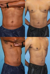 Coolsculpting Gallery - Patient 2161637 - Image 1