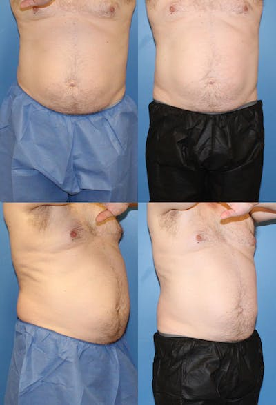 Coolsculpting Gallery - Patient 2161639 - Image 1
