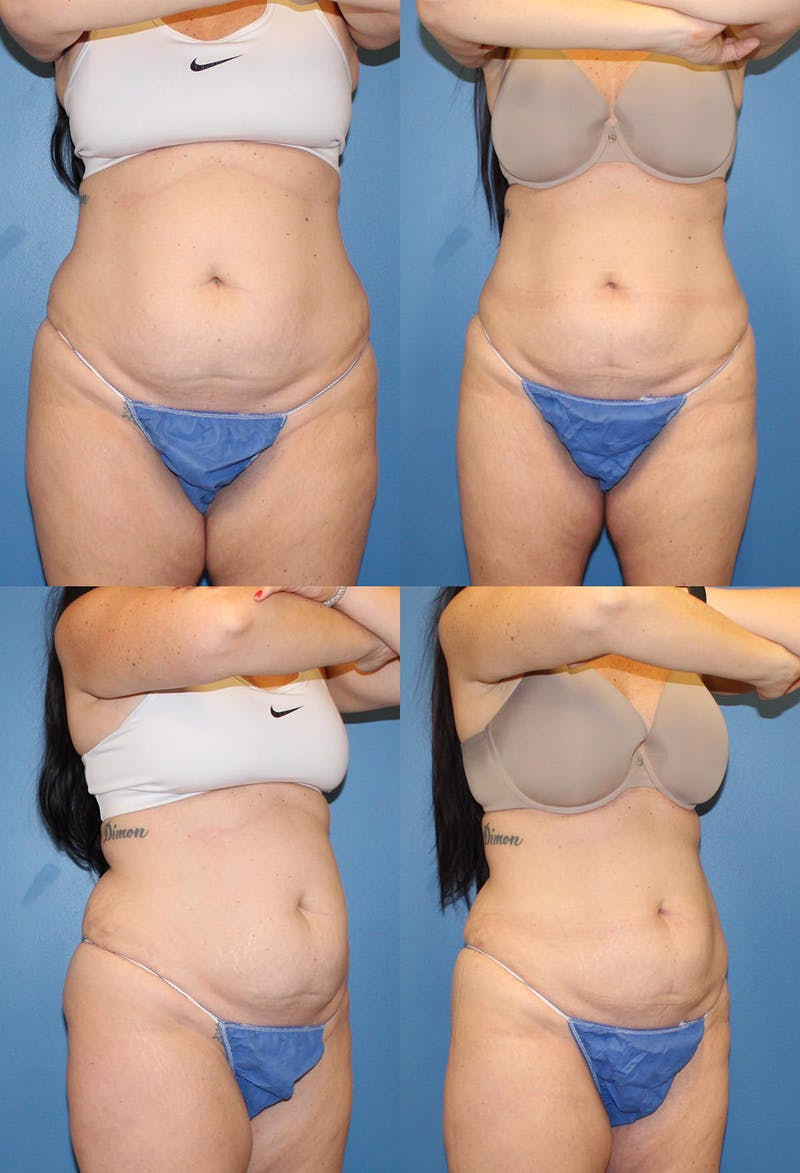 Coolsculpting Gallery - Patient 2161640 - Image 1