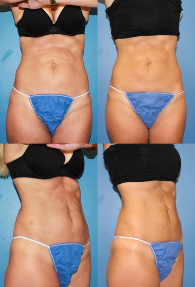 Coolsculpting Gallery - Patient 2161642 - Image 1