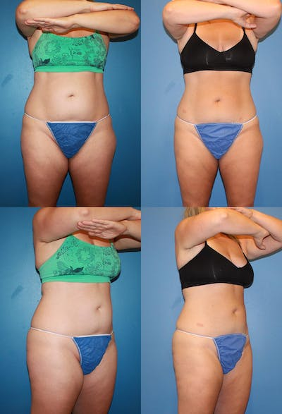 Coolsculpting Gallery - Patient 2161643 - Image 1