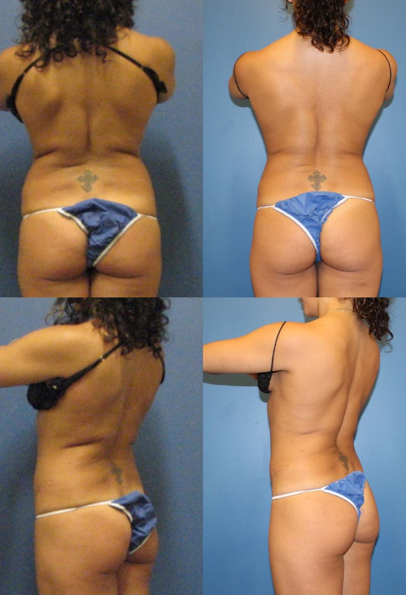 Coolsculpting Gallery - Patient 2161644 - Image 1