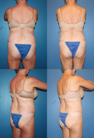 Coolsculpting Gallery - Patient 2161648 - Image 1