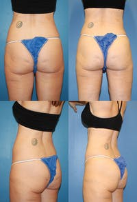 Coolsculpting Gallery - Patient 2161649 - Image 1