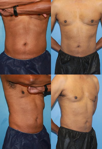 Coolsculpting Gallery - Patient 2161651 - Image 1