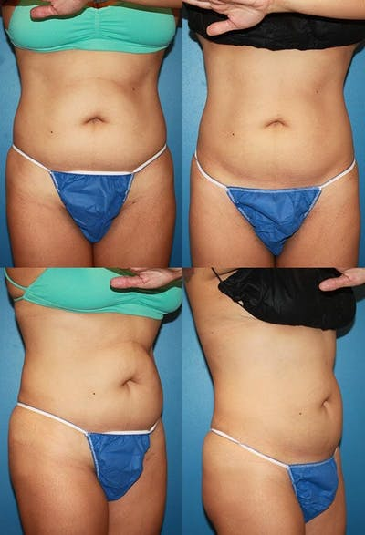 Coolsculpting Gallery - Patient 2161652 - Image 1