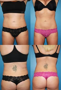 Coolsculpting Gallery - Patient 2161653 - Image 1