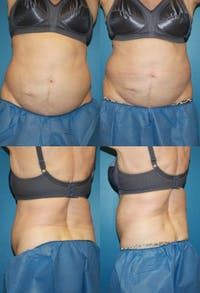 Coolsculpting Gallery - Patient 2161654 - Image 1