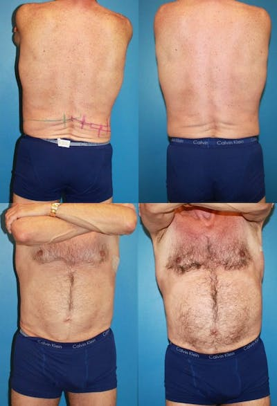 Coolsculpting Gallery - Patient 2161656 - Image 1
