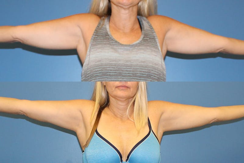 Coolsculpting Gallery - Patient 2161657 - Image 1