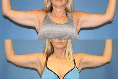 Coolsculpting Gallery - Patient 2161659 - Image 1