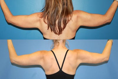 Coolsculpting Gallery - Patient 2161661 - Image 1