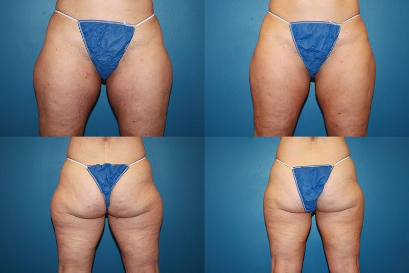 Coolsculpting Gallery - Patient 2161662 - Image 1