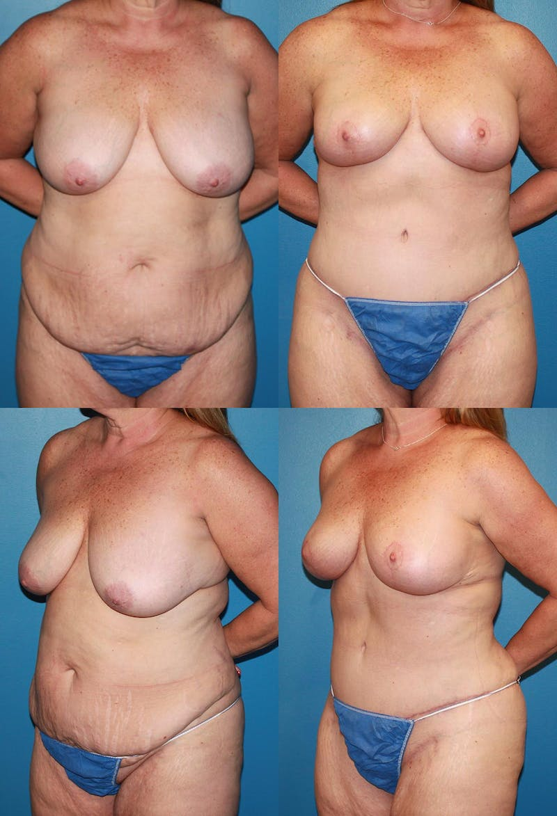 Mommy Makeover Gallery - Patient 2161669 - Image 1