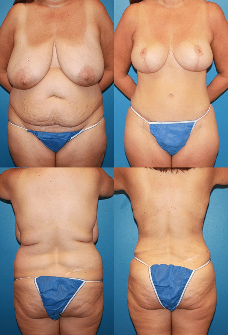 Mommy Makeover Gallery - Patient 2161673 - Image 1