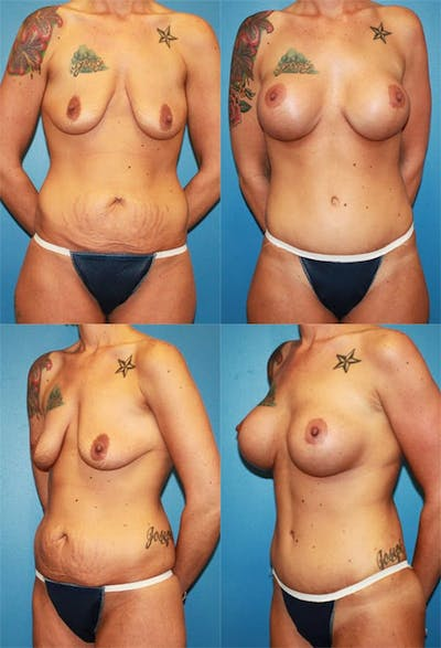 Mommy Makeover Gallery - Patient 2161674 - Image 1