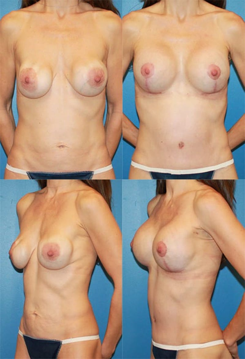 Mommy Makeover Gallery - Patient 2161681 - Image 1